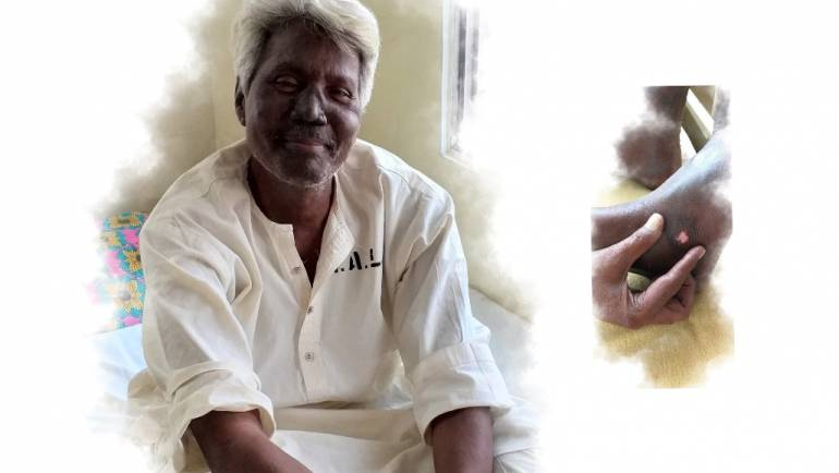 The doctor would not check me, just look at my face and prescribe medicines: Muhammad Inam's story
