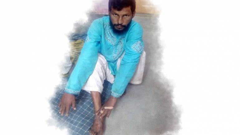 His wife left him for the fear of contracting Leprosy from him: Javaid's story